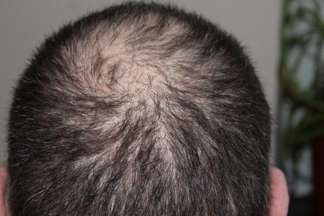 Quelques causes de la chute de cheveux